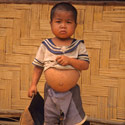 Young boy with pot-belly from the Kmou Tribe, Laos.